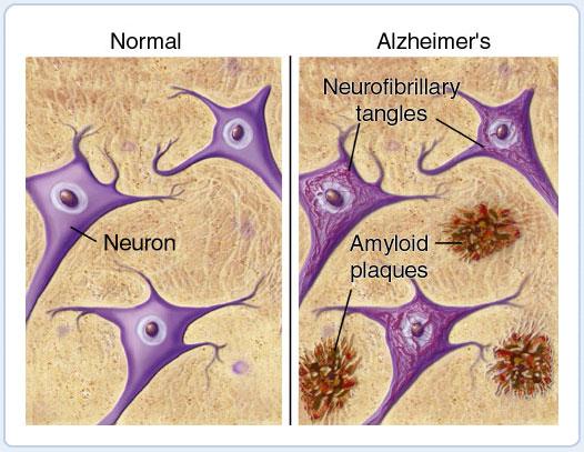 neuroni-sani-e-alzheimer